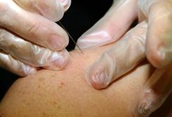 reumatológus konzultáció artrózis kezelés