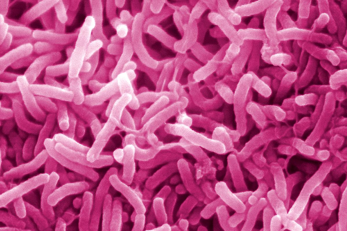 Becsavarodik, úgy fertőz a kolerabaktérium