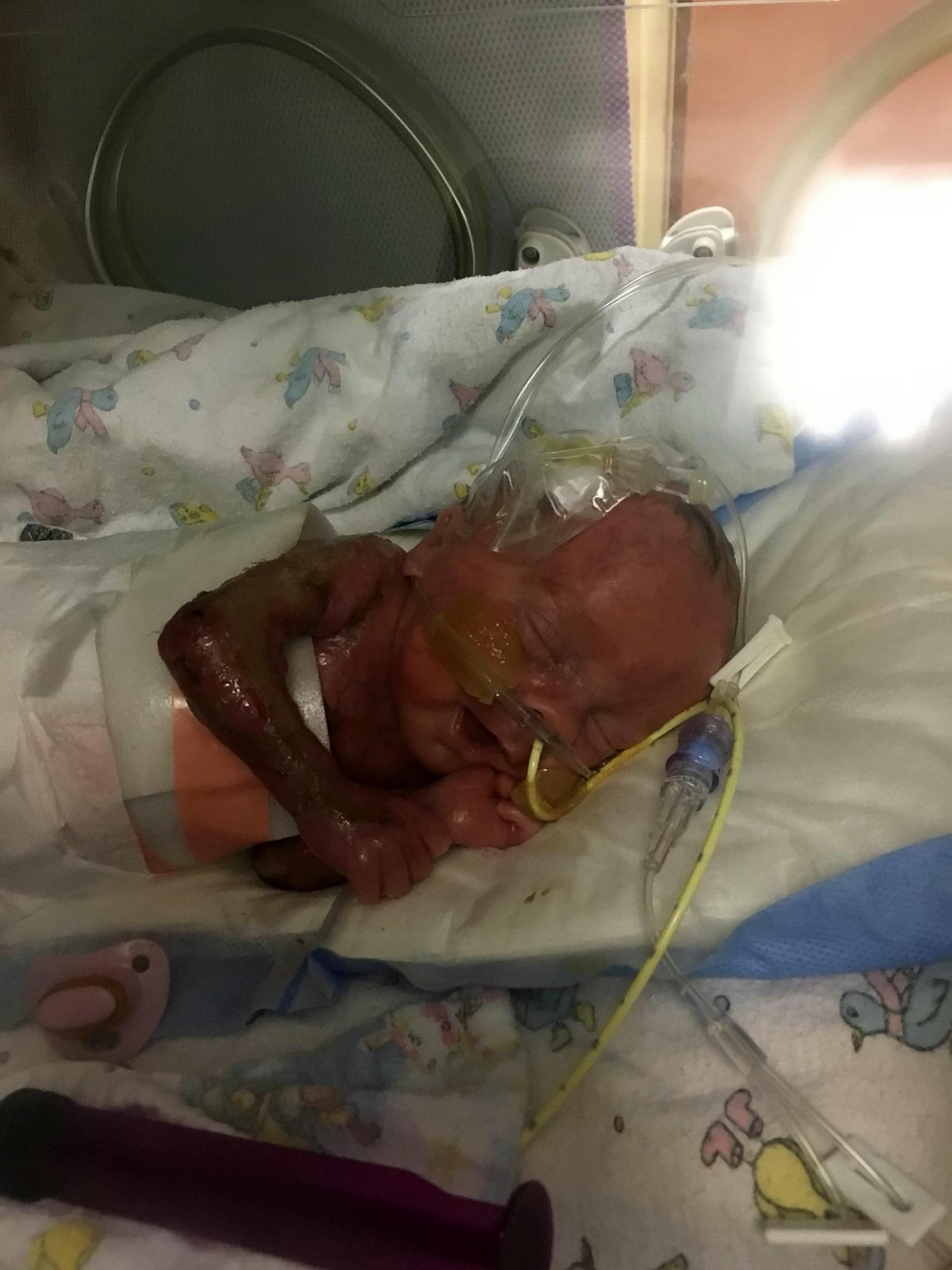 2b381b66ba39 Bőr nélkül született egy brit csecsemő, küzdenek a megmentéséért
