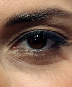 a szemhéjon egy vörös folt hámlik le a fotóról