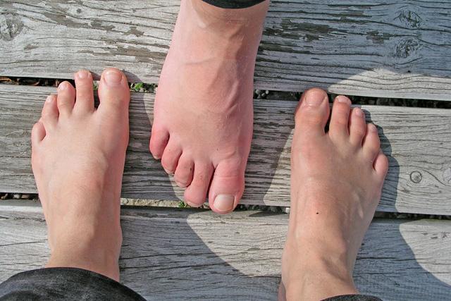 két lábujj izületi gyulladása