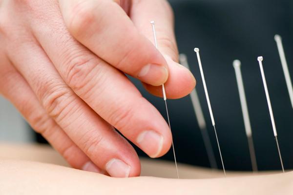 az akupunktúra a fogyás célja