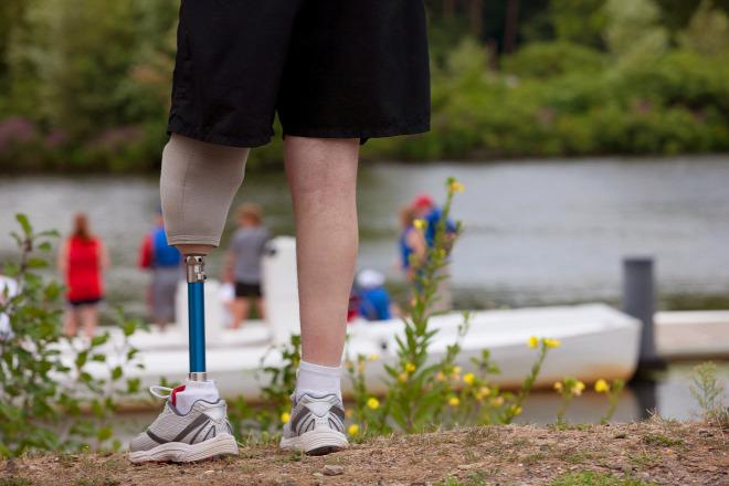 Fertőzés miatt veszítette el bal lábát és a péniszét egy férfi 033ed52ec5