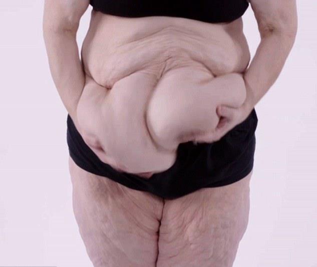 nagy hasa fogyás előtt és után)