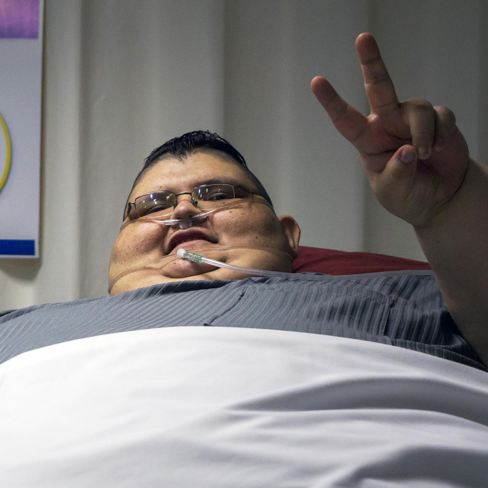 India a világ legkövérebb nője kilót fogyott,