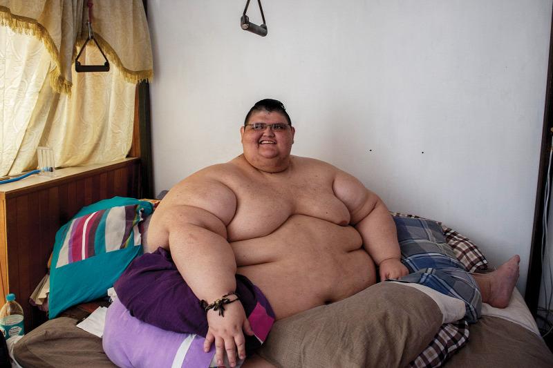 kórosan elhízott ember fogy