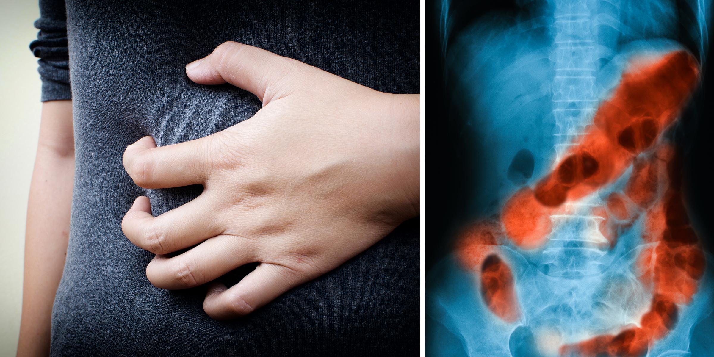 helmintikus terápia lupus papillomavírus onkogén sejtjei