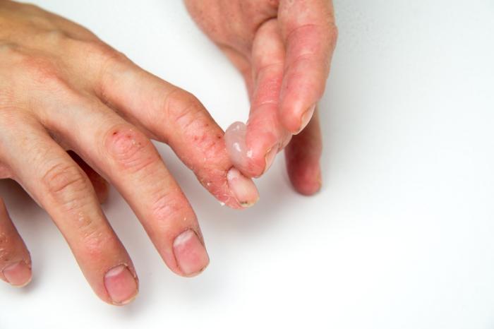pikkelysömör kezelés lemez pikkelysömör kezelése népi módszer