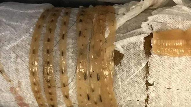 Szarvasmarha szalagféreg színű