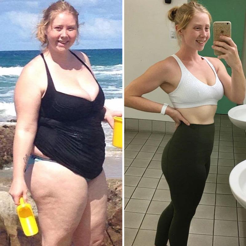 700 kilós nő fogy égető zsír öregedés
