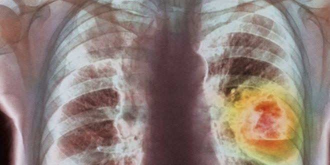 zihálás a tüdőben dohányzás kezelés