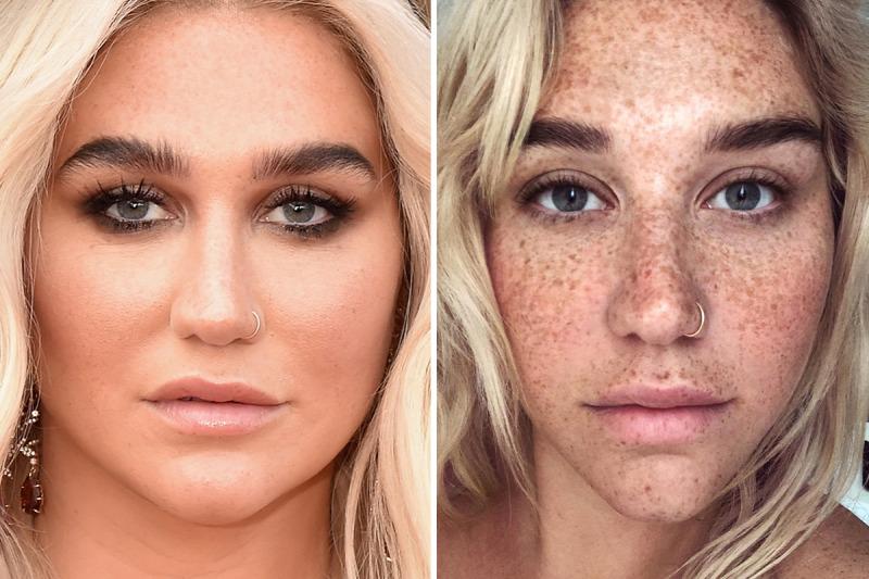 smink hogy vékonyítsa az arcát hírességek előtt és utáng