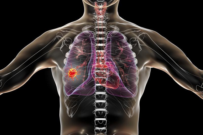 hogyan lehet tisztítani a tüdőt dohányzás után)