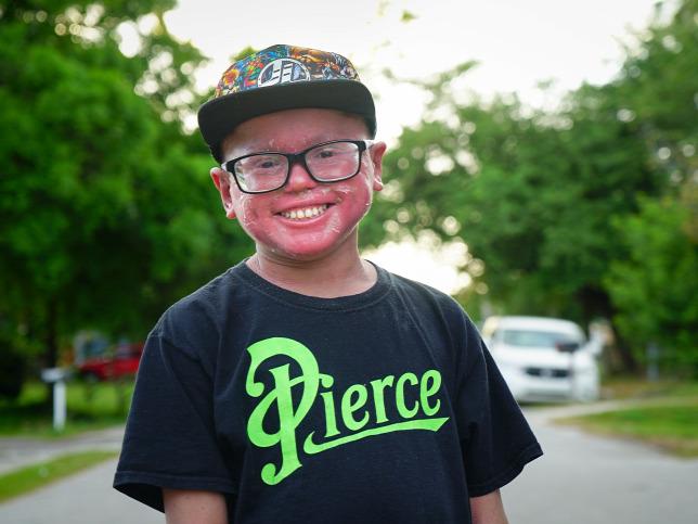 943703e88a Ritka betegségben szenved a floridai kisfiúForrás: NORTHFOTO/Barcroft  Media// Barcroft Media