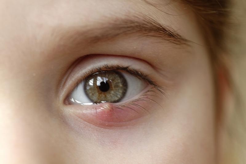Miért a vörös foltok a szem alatt és körül: diagnózis és hatékony kezelés