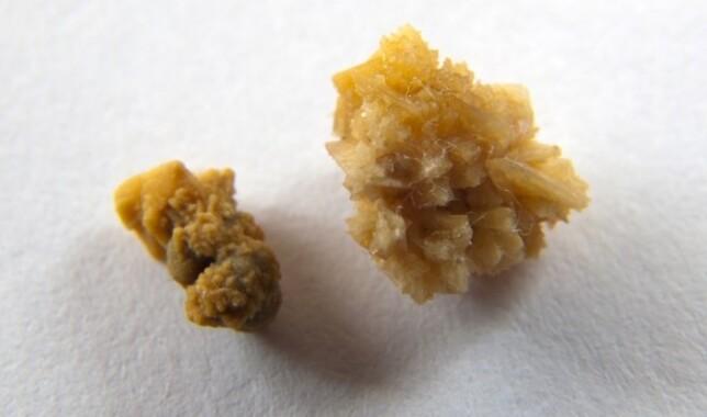 A gyógynövények infúziója a prostatitisekkel Baba koncepció krónikus prosztatitissel