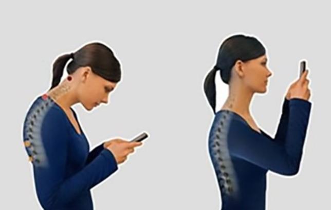 Nyakfájást és karzsibbadást is okozhat az sms-nyak